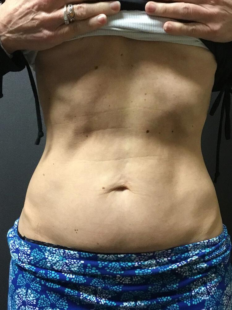 Coolsculpting Vancouver Before & After | Patient 01 Photo 1 Thumb