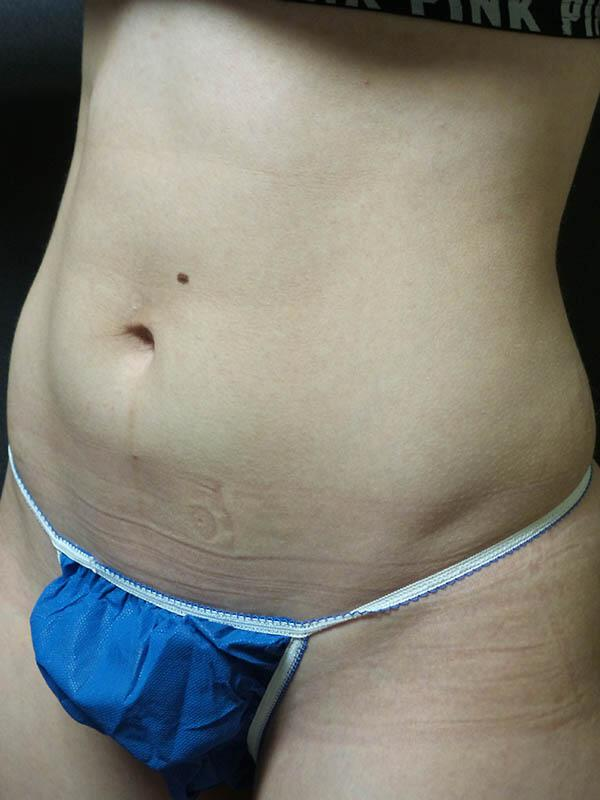 Coolsculpting Vancouver Before & After | Patient 02 Photo 0