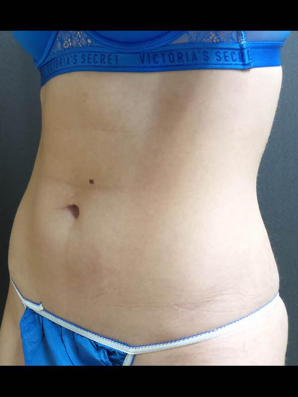 Coolsculpting Vancouver Before & After | Patient 02 Photo 1 Thumb