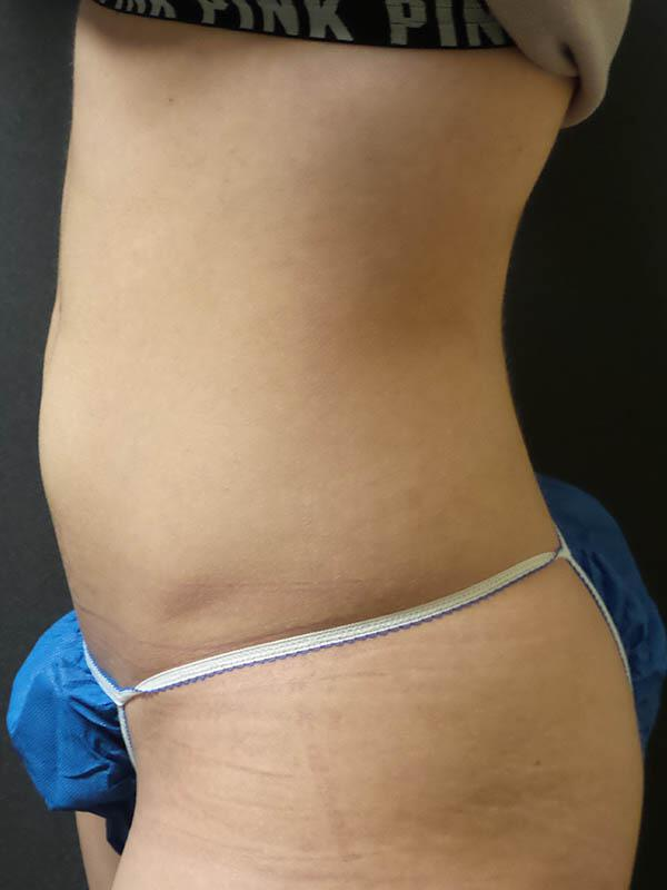 Coolsculpting Vancouver Before & After | Patient 02 Photo 2