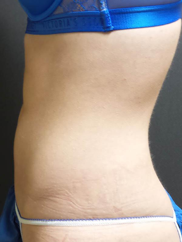 Coolsculpting Vancouver Before & After | Patient 02 Photo 3