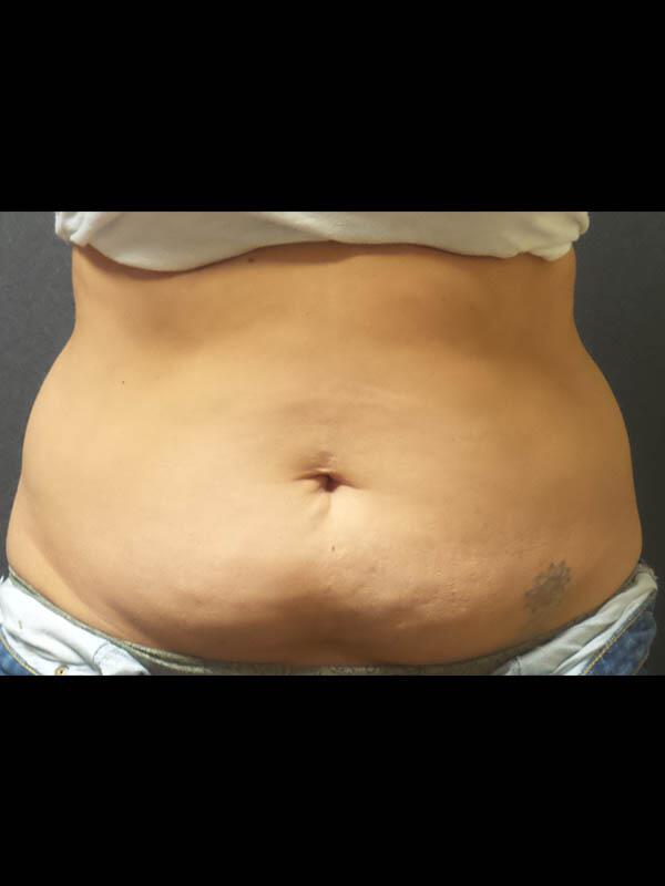 Coolsculpting Vancouver Before & After | Patient 03 Photo 0