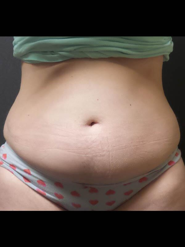 Coolsculpting Vancouver Before & After | Patient 05 Photo 0 Thumb