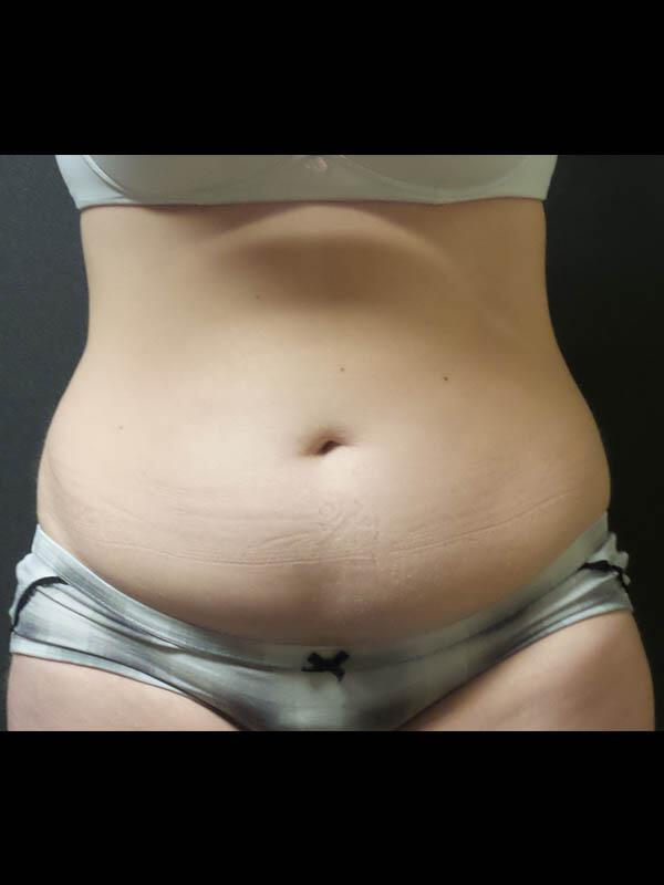 Coolsculpting Vancouver Before & After | Patient 05 Photo 1 Thumb