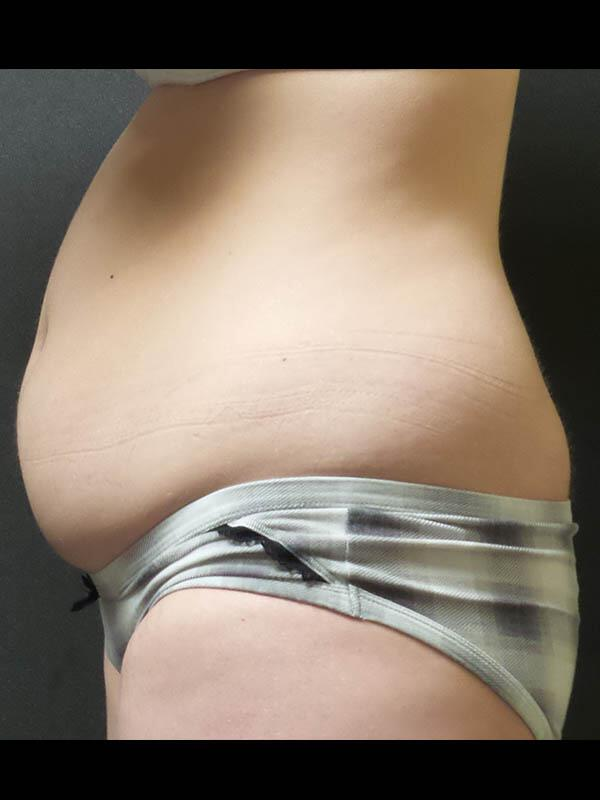 Coolsculpting Vancouver Before & After | Patient 05 Photo 3 Thumb