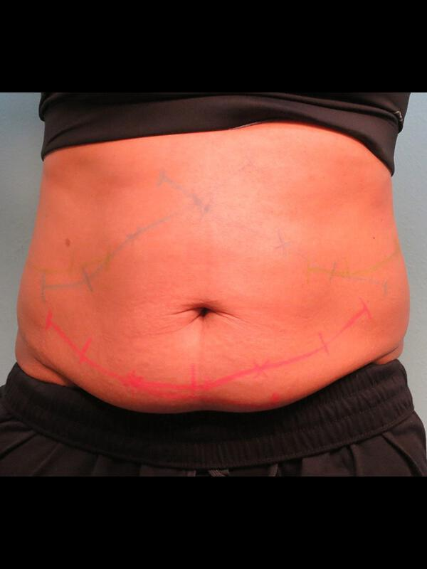 Coolsculpting Vancouver Before & After | Patient 07 Photo 0 Thumb