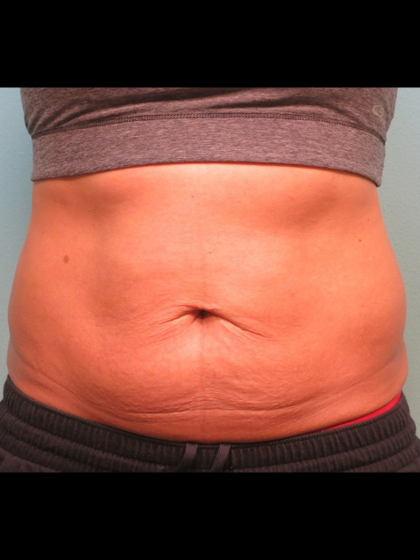 Coolsculpting Vancouver Before & After | Patient 07 Photo 1 Thumb