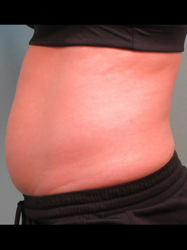 Coolsculpting Vancouver Before & After | Patient 08 Photo 0 Thumb
