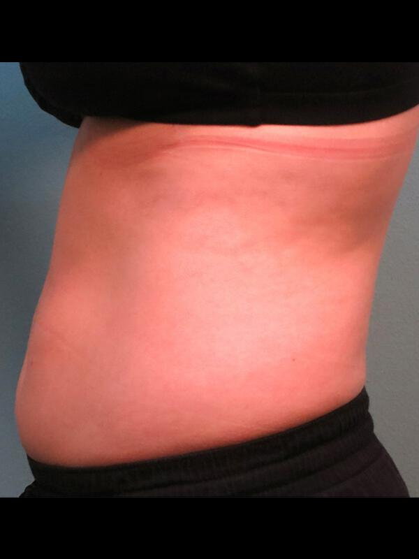 Coolsculpting Vancouver Before & After | Patient 08 Photo 1 Thumb