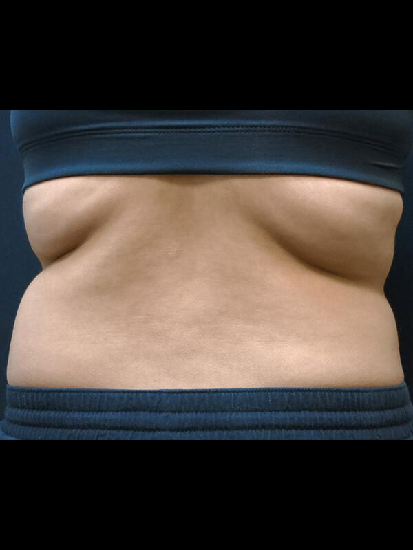 Coolsculpting Vancouver Before & After | Patient 10 Photo 0 Thumb
