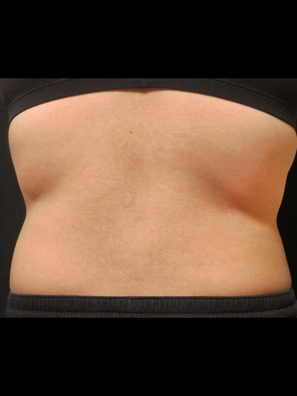 Coolsculpting Vancouver Before & After | Patient 10 Photo 1 Thumb