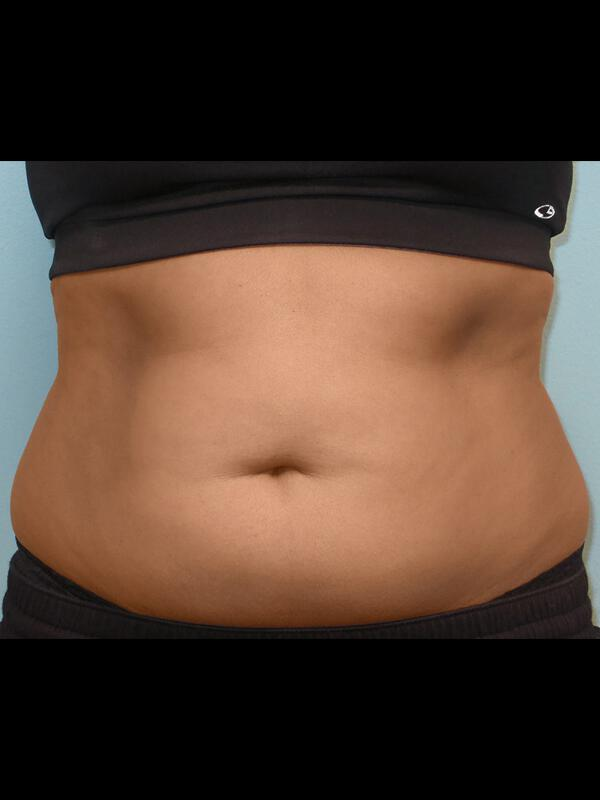 Coolsculpting Vancouver Before & After | Patient 11 Photo 0 Thumb