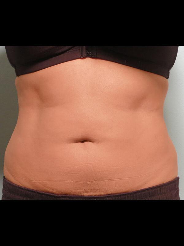 Coolsculpting Vancouver Before & After | Patient 11 Photo 1 Thumb