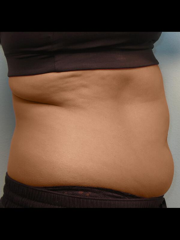 Coolsculpting Vancouver Before & After | Patient 12 Photo 0 Thumb