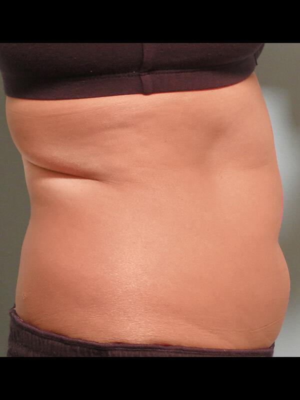 Coolsculpting Vancouver Before & After | Patient 12 Photo 1 Thumb