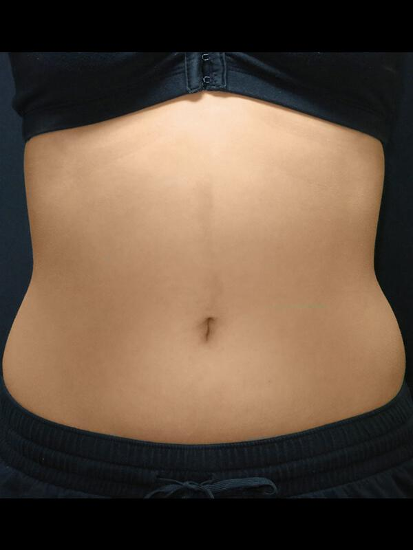 Coolsculpting Vancouver Before & After | Patient 13 Photo 0 Thumb