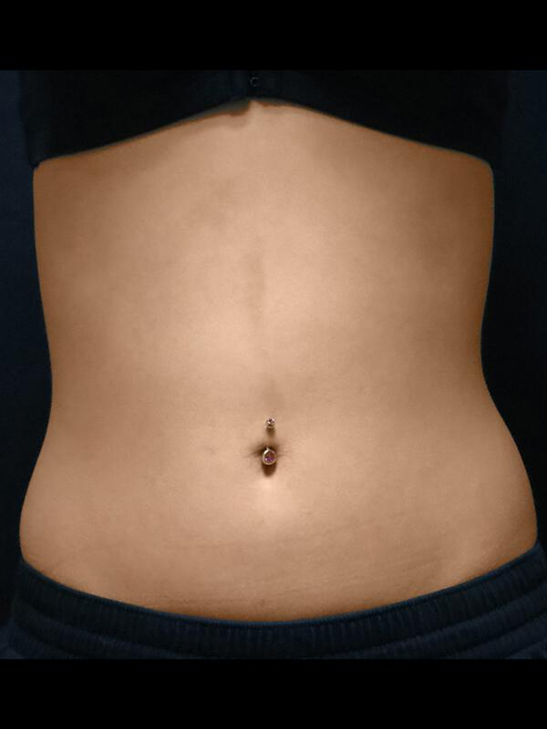 Coolsculpting Vancouver Before & After | Patient 13 Photo 1 Thumb