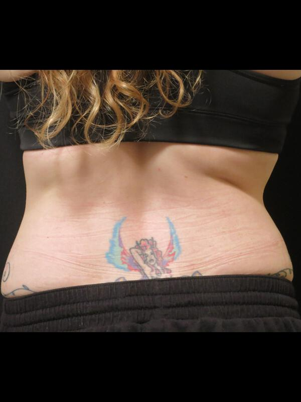 Coolsculpting Vancouver Before & After | Patient 14 Photo 0 Thumb
