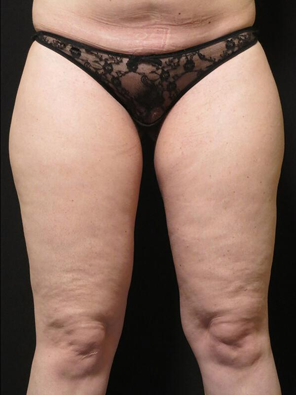 Coolsculpting Vancouver Before & After | Patient 15 Photo 1 Thumb
