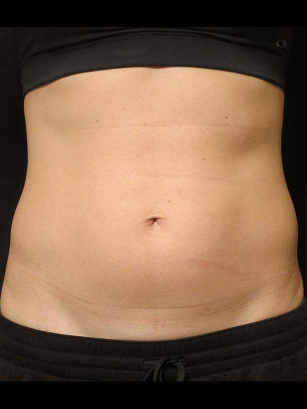 Coolsculpting Vancouver Before & After | Patient 16 Photo 0