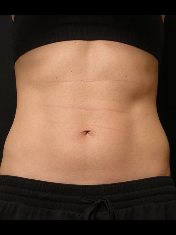 Coolsculpting Vancouver Before & After | Patient 16 Photo 1 Thumb