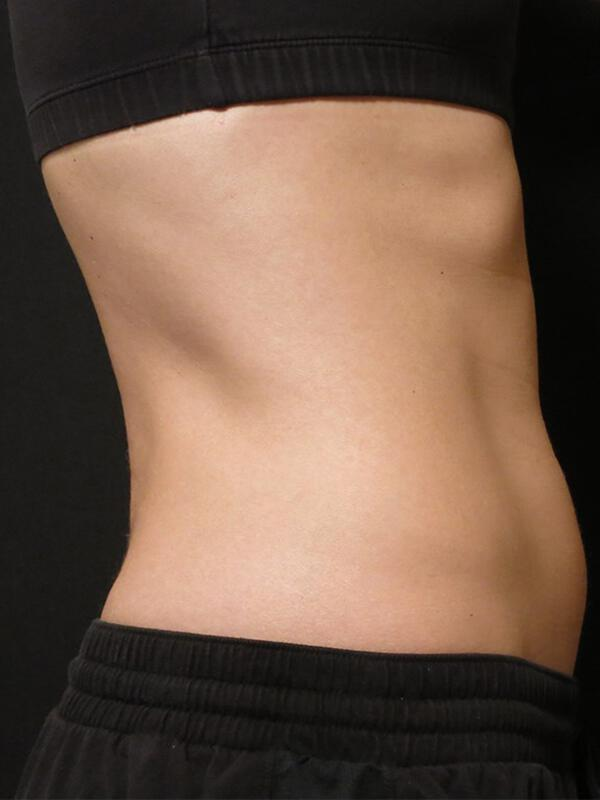 Coolsculpting Vancouver Before & After | Patient 16 Photo 3 Thumb