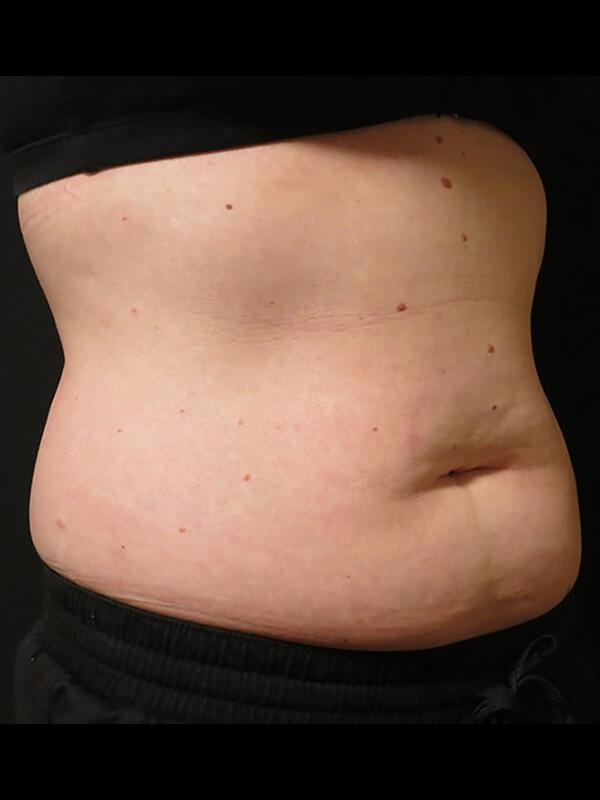 Coolsculpting Vancouver Before & After | Patient 17 Photo 0 Thumb