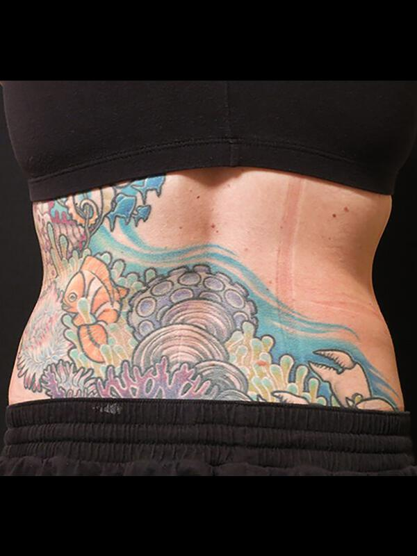Coolsculpting Vancouver Before & After | Patient 18 Photo 1