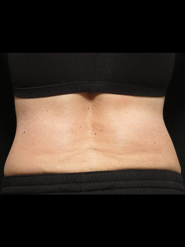 Coolsculpting Vancouver Before & After | Patient 19 Photo 1